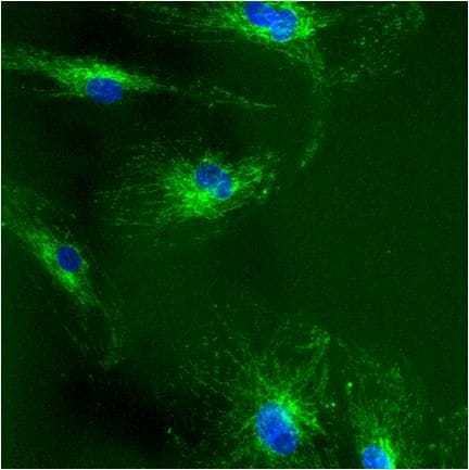 Immunocytochemistry/ Immunofluorescence - Anti-Grp75/MOT antibody [JG1] (ab2799)