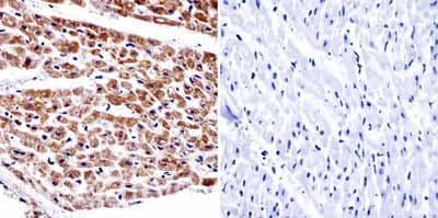 Immunohistochemistry (Formalin/PFA-fixed paraffin-embedded sections) - Anti-alpha Adaptin antibody [AC1-M11] (ab2807)