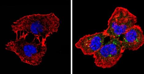 Immunocytochemistry/ Immunofluorescence - Anti-beta 1 Spectrin antibody [4C3] (ab2808)