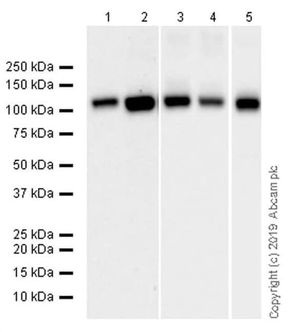 Western blot - Anti-SERCA2 ATPase antibody [IID8] (ab2817)