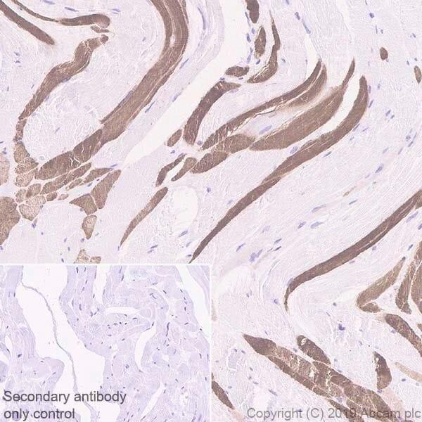 Immunohistochemistry (Formalin/PFA-fixed paraffin-embedded sections) - Anti-SERCA2 ATPase antibody [IID8] (ab2817)
