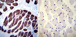 Immunohistochemistry (Formalin/PFA-fixed paraffin-embedded sections) - Anti-SERCA1 ATPase antibody [VE121G9] (ab2819)