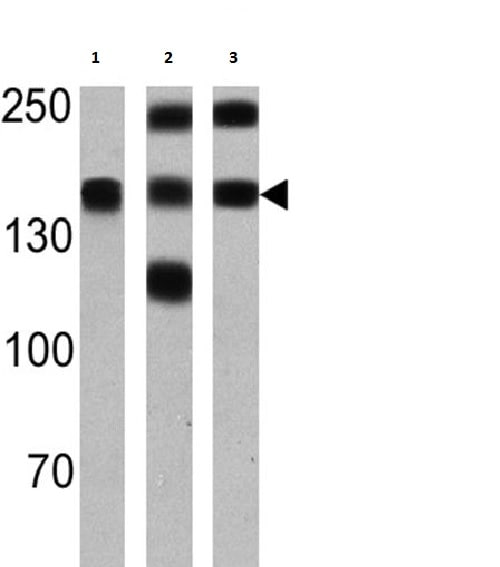 Western blot - Anti-Calcium Pump pan PMCA ATPase antibody [5F10] (ab2825)