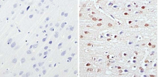 Immunohistochemistry (Formalin/PFA-fixed paraffin-embedded sections) - Anti-MeCP2 antibody - ChIP Grade (ab2828)
