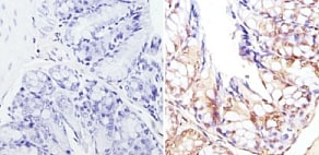 Immunohistochemistry (Formalin/PFA-fixed paraffin-embedded sections) - Anti-CREBBP antibody (ab2832)