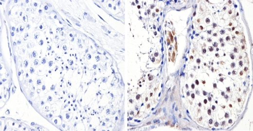 Immunohistochemistry (Formalin/PFA-fixed paraffin-embedded sections) - Anti-Dnmt3b antibody - ChIP Grade (ab2851)