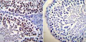 Immunohistochemistry (Formalin/PFA-fixed paraffin-embedded sections) - Anti-Calmodulin 1/2/3 antibody [2D1] (ab2860)