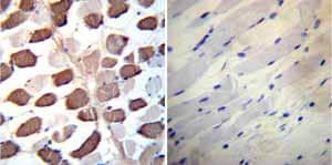 Immunohistochemistry (Formalin/PFA-fixed paraffin-embedded sections) - Anti-SERCA2 ATPase antibody [2A7-A1] (ab2861)