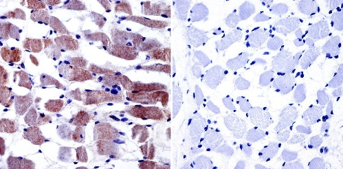 Immunohistochemistry (Formalin/PFA-fixed paraffin-embedded sections) - Anti-CACNA1S antibody [1A] (ab2862)