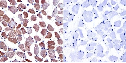 Immunohistochemistry (Formalin/PFA-fixed paraffin-embedded sections) - Anti-Calcium channel L type DHPR alpha 2 subunit/CACNA2D1 antibody [20A] (ab2864)