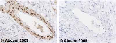 Immunohistochemistry (Formalin/PFA-fixed paraffin-embedded sections) - Anti-Phospholamban antibody [2D12] (ab2865)