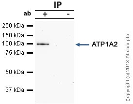 Immunoprecipitation - Anti-pan ATPase Alpha antibody [M7-PB-E9] (ab2871)