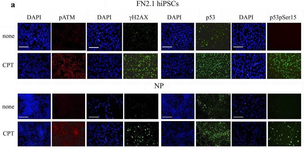 Immunocytochemistry/ Immunofluorescence - Anti-gamma H2A.X (phospho S139) antibody (ab2893)