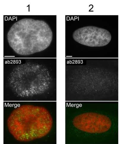Immunocytochemistry/ Immunofluorescence - Anti-gamma H2A.X (phospho S139) antibody - ChIP Grade (ab2893)