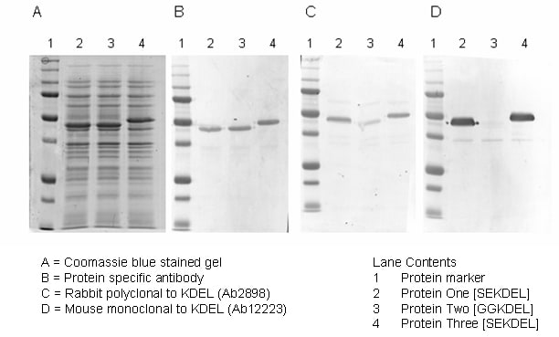 Western blot - Anti-KDEL antibody (ab2898)