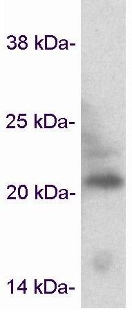 Western blot - Anti-Caveolin-3 antibody (ab2912)