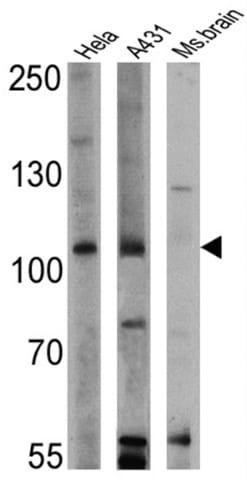 Western blot - Anti-RASA1 antibody [B4F8] (ab2922)