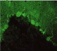 Immunocytochemistry/ Immunofluorescence - Anti-PSD93 antibody (ab2930)