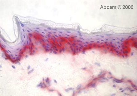Immunohistochemistry (Frozen sections) - Anti-Integrin alpha 3 antibody [F35 177-1] (ab20140)