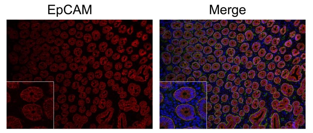 Immunohistochemistry (Formalin/PFA-fixed paraffin-embedded sections) - Anti-EpCAM antibody [AUA1] (ab20160)