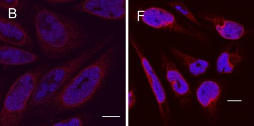 Immunocytochemistry/ Immunofluorescence - Anti-HSV1 ICP8 Major DNA binding protein antibody [11E2] (ab20194)