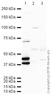 Western blot - Anti-Cytokeratin 19 antibody [BA16] (ab20210)
