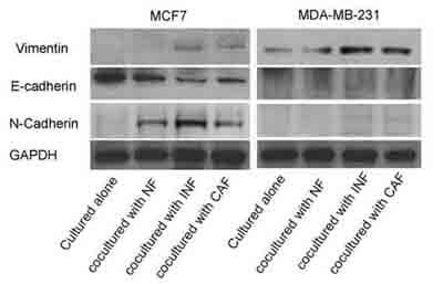 Western blot - Anti-Vimentin antibody [VI-10] (ab20346)