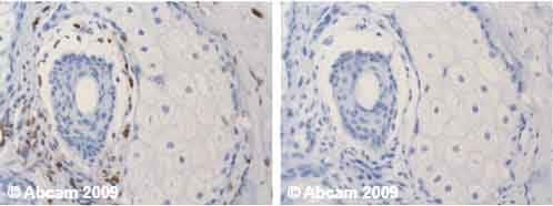 Immunohistochemistry (Formalin/PFA-fixed paraffin-embedded sections) - Anti-Vimentin antibody [VI-10] (ab20346)