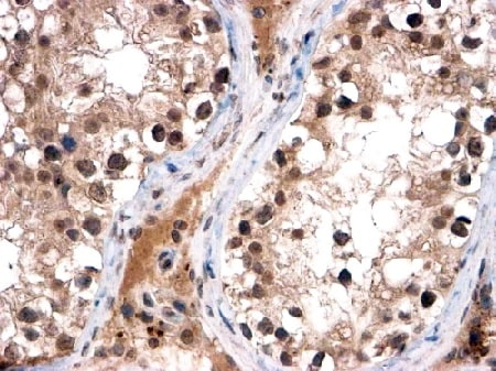 Immunohistochemistry (Formalin/PFA-fixed paraffin-embedded sections) - Anti-FOXI1 antibody (ab20454)