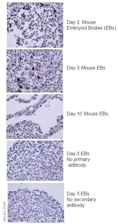 Immunohistochemistry (Formalin/PFA-fixed paraffin-embedded sections) - Anti-Brachyury / Bry antibody (ab20680)