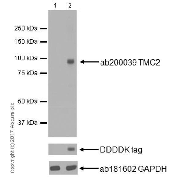 Western blot - Anti-TMC2 antibody [EPR19446] (ab200039)