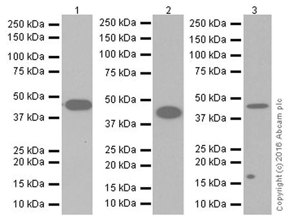 Western blot - Anti-gamma Actin antibody [EPR19353-2] (ab200046)
