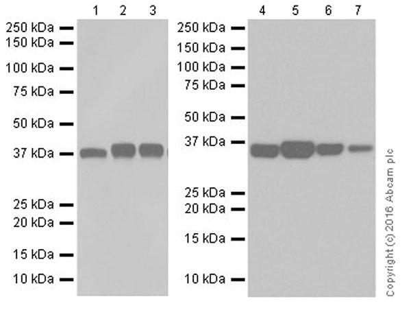Western blot - Anti-Aldolase + Aldolase C antibody [EPR19355] (ab200049)