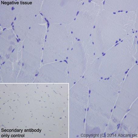 Immunohistochemistry (Formalin/PFA-fixed paraffin-embedded sections) - Anti-ASGR2 antibody [EPR16975] (ab200196)