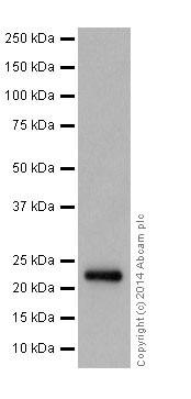 Western blot - Anti-NDUFB9 antibody [EPR15955-78] (ab200198)