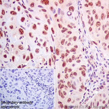 Immunohistochemistry (Formalin/PFA-fixed paraffin-embedded sections) - Anti-PML Protein antibody [EPR16768] (ab200200)