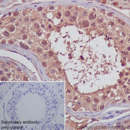 Immunohistochemistry (Formalin/PFA-fixed paraffin-embedded sections) - Anti-PELP1 antibody [EPR15213] (ab200203)