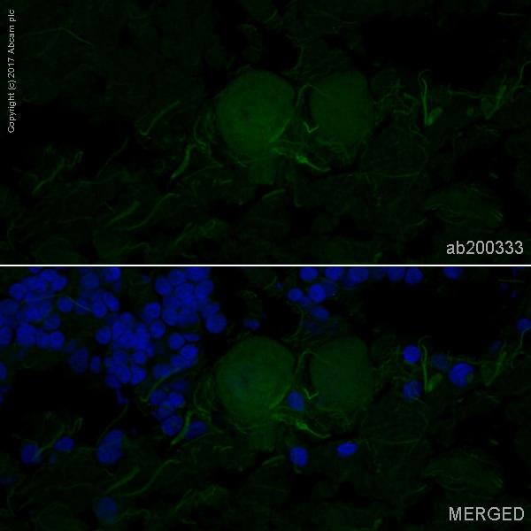 Immunohistochemistry (Frozen sections) - Anti-NCAM1 antibody [EPR2566] (Alexa Fluor® 488) (ab200333)