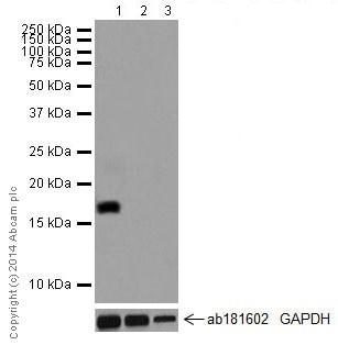 Western blot - Anti-CCL25 antibody [EPR12388(2)] (ab200343)