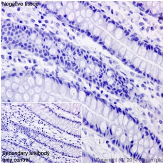 Immunohistochemistry (Formalin/PFA-fixed paraffin-embedded sections) - Anti-CCL25 antibody [EPR12388(2)] (ab200343)