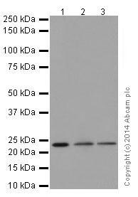 Western blot - Anti-STARD4 antibody [EPR17847] (ab200344)