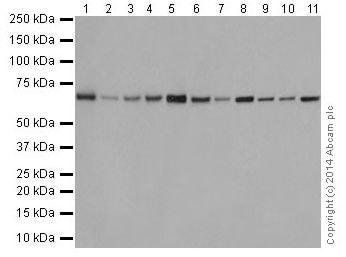 Western blot - Anti-SLC27A4 / FATP4 antibody [EPR17319-26] (ab200353)