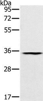 Western blot - Anti-RNF35 antibody (ab200354)
