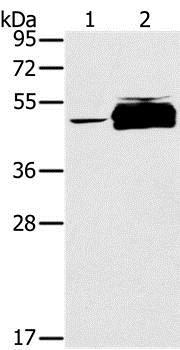 Western blot - Anti-PTPN20B antibody (ab200356)
