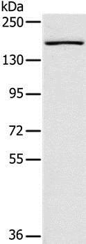 Western blot - Anti-SAMD9L antibody (ab200359)