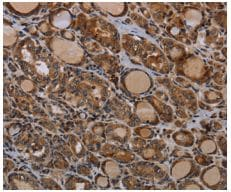 Immunohistochemistry (Formalin/PFA-fixed paraffin-embedded sections) - Anti-PAPP A antibody (ab200374)