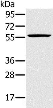 Western blot - Anti-RNF21/IFP1 antibody (ab200386)