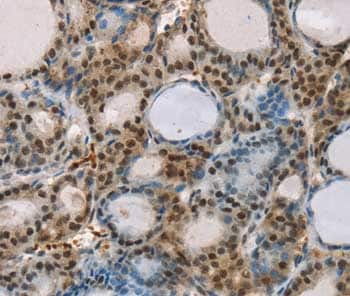 Immunohistochemistry (Formalin/PFA-fixed paraffin-embedded sections) - Anti-RUNX1T1/ETO/CDR antibody (ab200392)