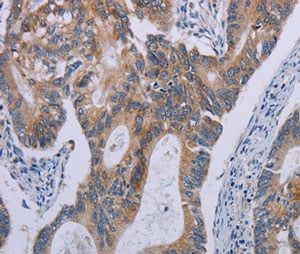 Immunohistochemistry (Formalin/PFA-fixed paraffin-embedded sections) - Anti-Proteinase Activated Receptor 3/PAR-3 antibody (ab200400)