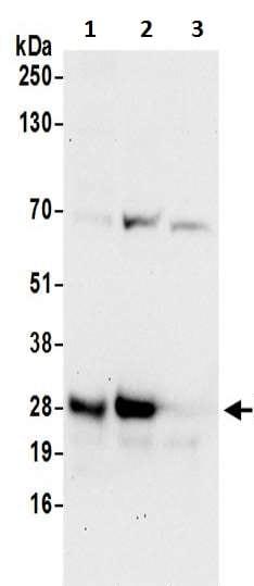 Western blot - Anti-PCNP antibody (ab200551)